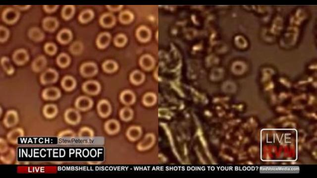 BREAKING DISCOVERY! Doctor Releases Horrific Findings that show how the Covid Jab Mutates your Blood 15-7-2021