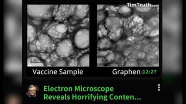 ELECTRON MICROSCOPE REVEALS HORRIFYING CONTENTS OF COVID-19 VACCINE! 8-7-2021