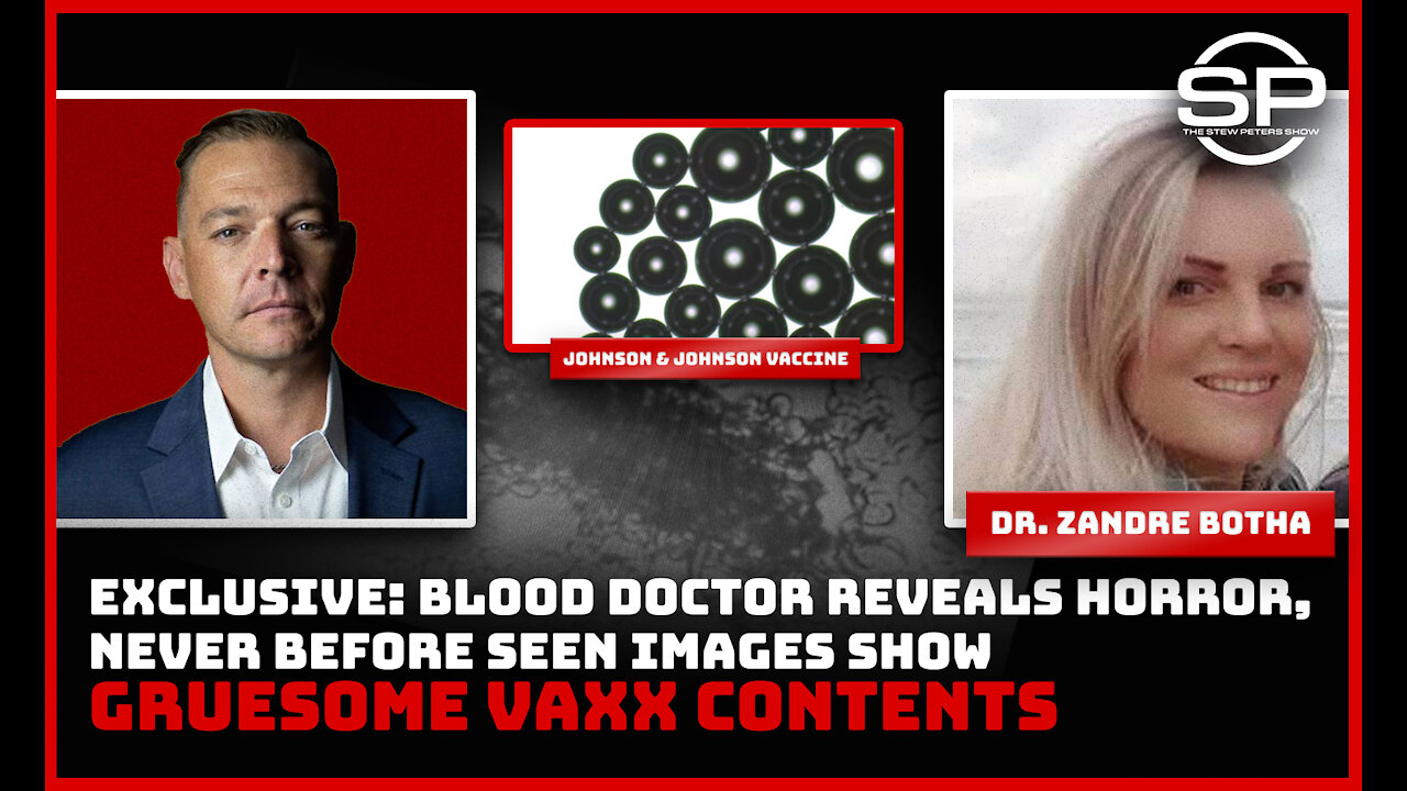 Never Before Seen: Blood Doctor Reveals HORRIFIC Findings After Examining Vials 4-10-2021